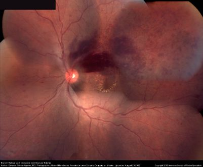 Fundus photograph composition of the left eye, showing flame-shaped and blot hemorrhages in the superotemporal quadrant, with hard exudates surrounding the fovea.